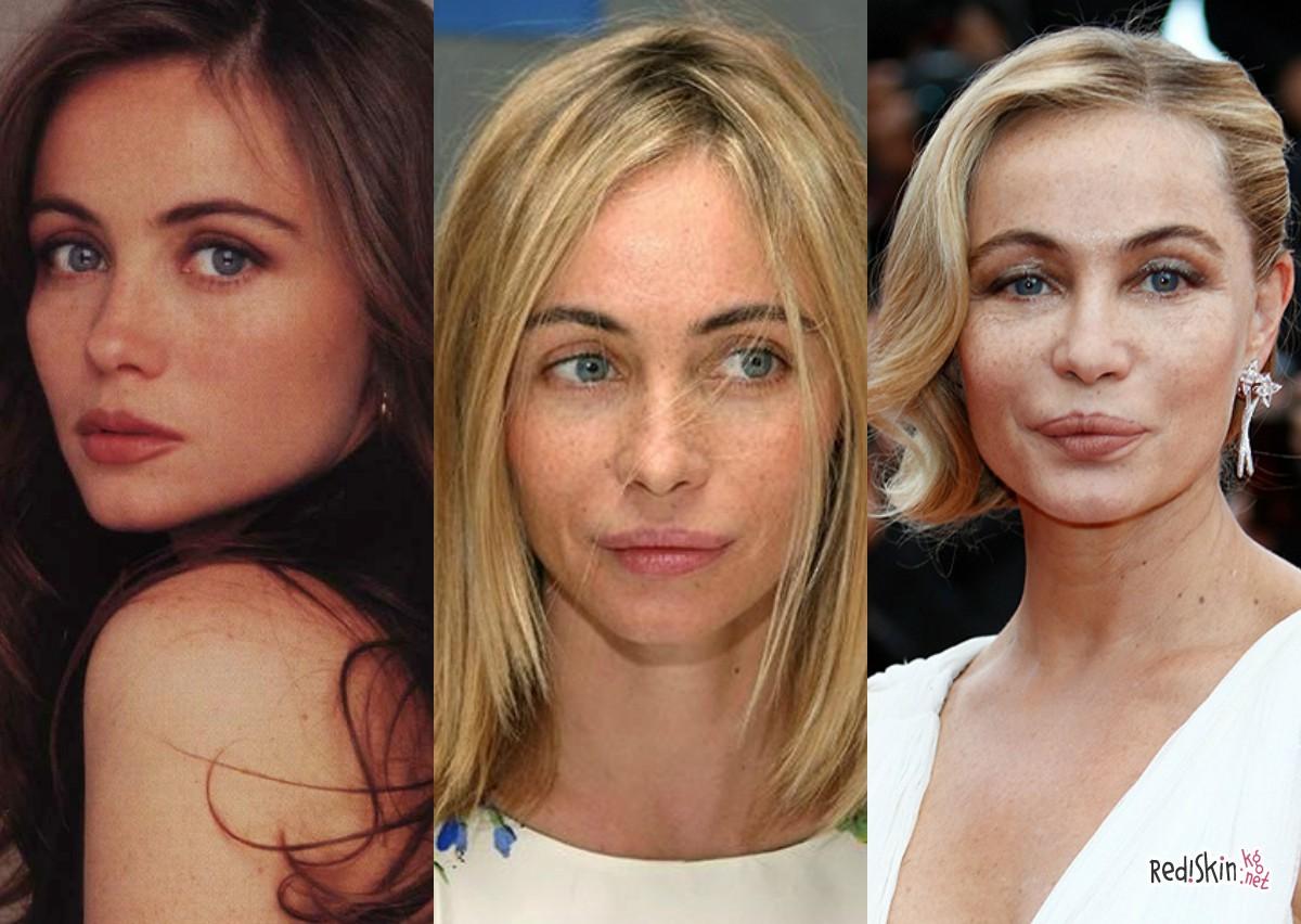 все благодаря жены голливудских звезд фото до и после польская столица значительно